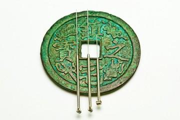 Akupunktura - druhý pilíř tradiční čínské medicíny